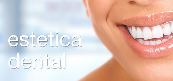 Estética Dental Jerez