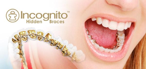 Ortodoncia incógnito Jerez