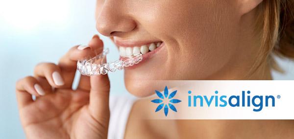 Ortodoncia invisalign Jerez