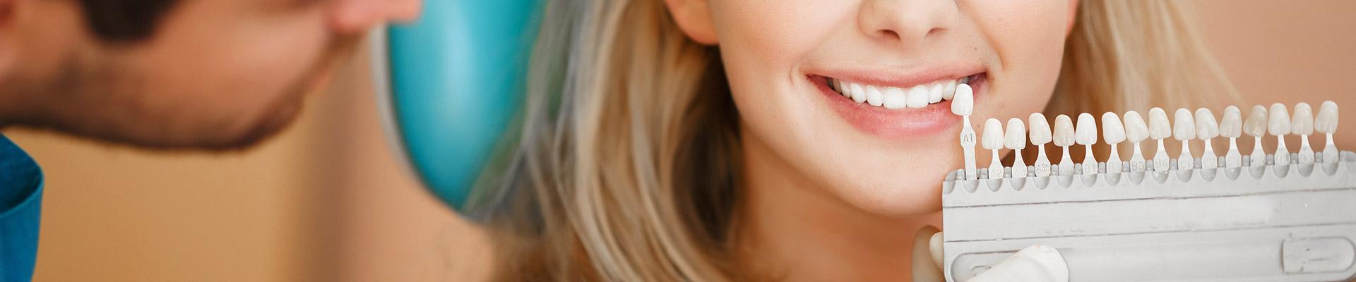 Blanqueamiento dental en Jerez