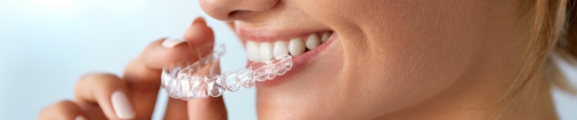 Ortodoncia invisible invisalign el bosque cl nica dental for Clinica dental jerez de la frontera
