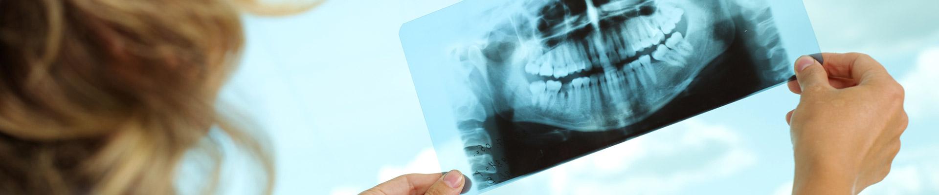 Radiología dental jerez