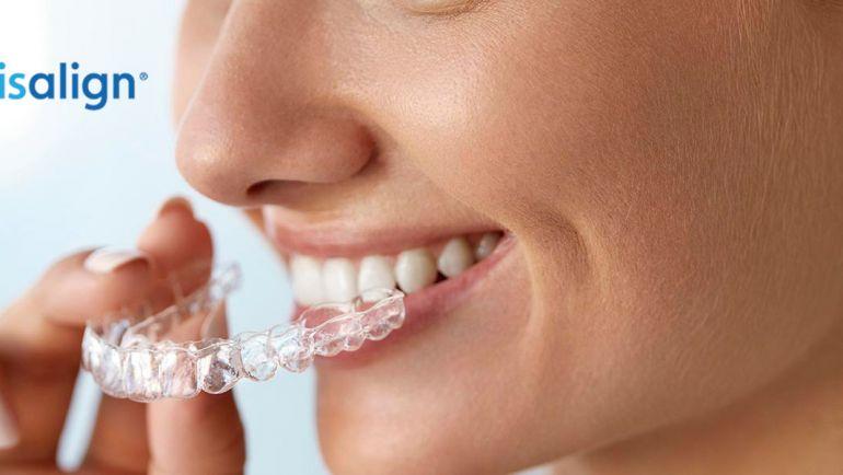 Invisalign en Jerez de la Frontera: la ortodoncia sin brackets
