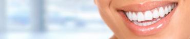 Ortodoncia, blanqueamiento interno y carillas dentales