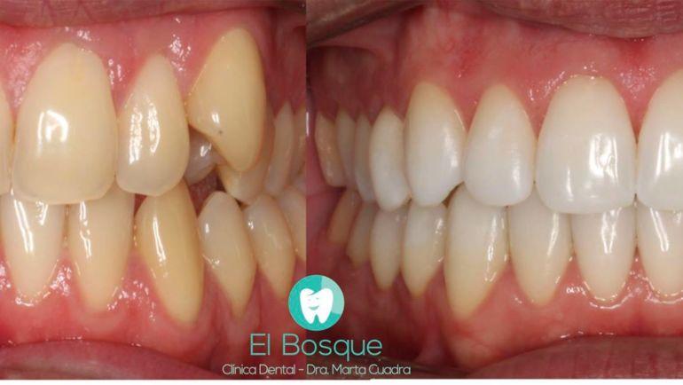 Ortodoncia Invisible y Blanqueamiento