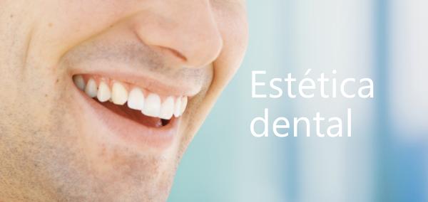 Tratamiento de estética dental en El Bosque Clínica Dental en Jerez de la Frontera